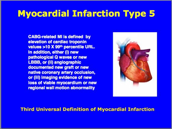 myocardial infarction research paper Myocardial infarction go to the following link: research paper writing such as term papers, research papers, thesis papers.