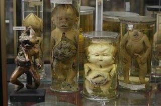 One of the most scary museums in Paris - Musée Dupuytren is a museum of anatomical items illustrating diseases and malformations. It is located at 15, rue de l'Ecole de Médecine and open from 14:00 till 16:30 on workdays except holidays and university vacations. #paris #museums #france