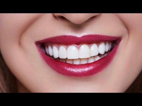 In 5 Minutes Change The Yellow Teeth To Pearly White Whiten