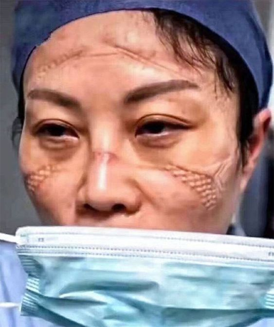 Chinese Nurses Share Pictures Of How Their Faces Look After Countless Hours Fighting The Coronavirus | Bored Panda
