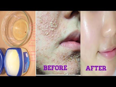 This Is Not A Joke Vaseline And Egg Will Transform Your Skin