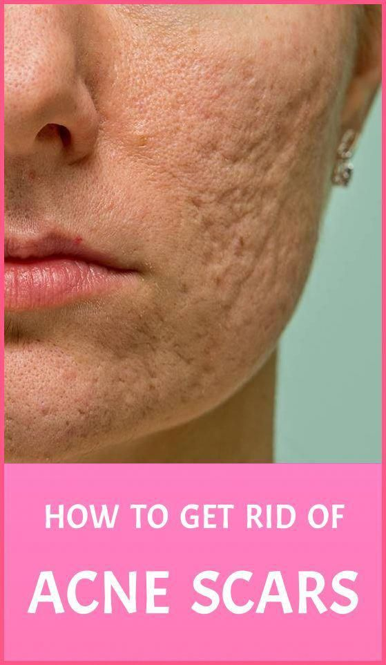 How To Get Rid Of Cutting Scars At Home