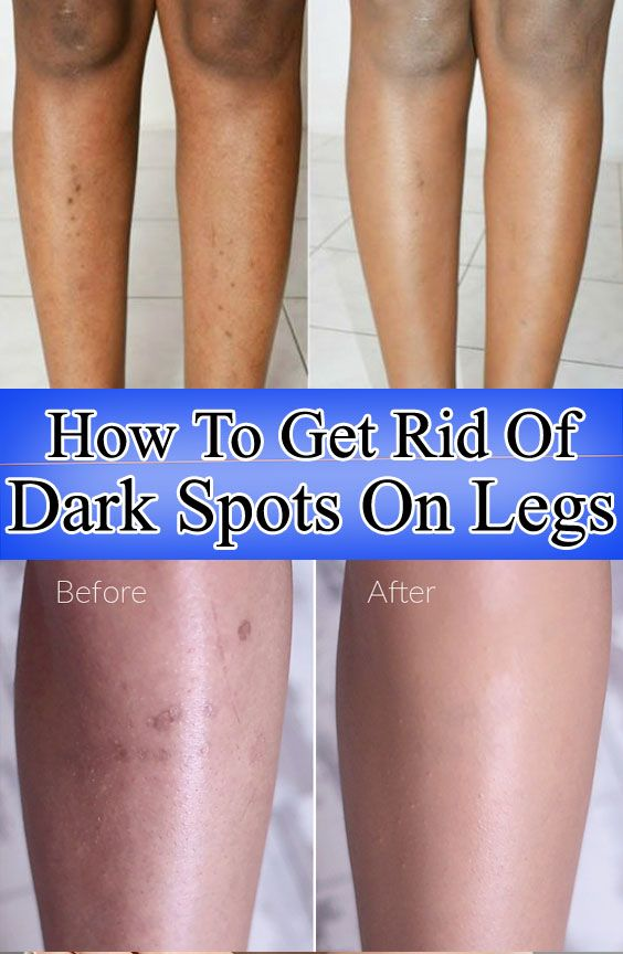 Can You Get Acne On Your Legs How To Get Rid Of Dark Spots On Legs In 2020 Dark Spots On Legs Spots On Legs Skin Care Dark Spots