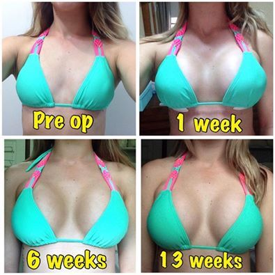 Drop and Fluff: A Breast Augmentation Recovery Timeline