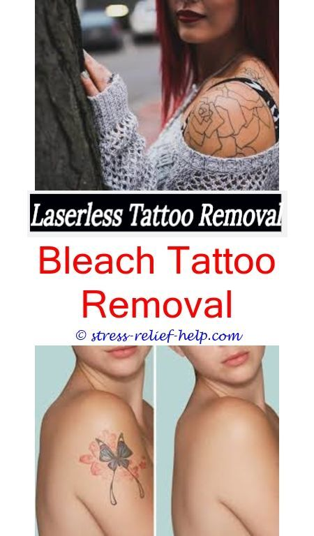 Where Can I Remove My Tattoo How To Remove A Tattoo At Home