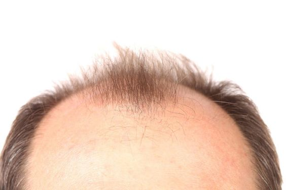 Early Hair Loss: Fact vs. Fiction #hairloss #hairtransplant