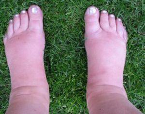 dikke-voeten-enkels