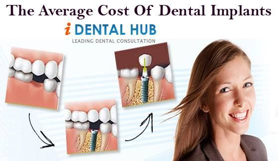 fixed teeth implants cost in india