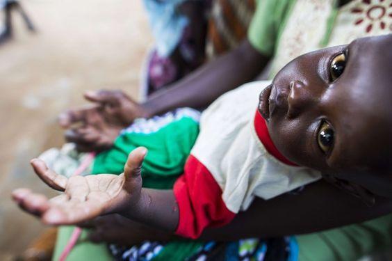 Die gute Nachricht vorweg: Weltweit sterben immer weniger Menschen an Unterernährung. Doch noch immer hungert mehr als jeder Achte, bewaffnete Konflikte verschärfen das Problem.