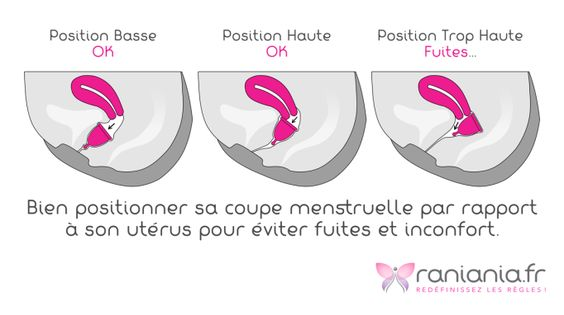 Illustration-Fuites-Coupe-Menstruelle