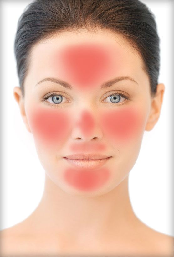 Rosacea: Symptoms | Triggers | Natural and Medical Treatments