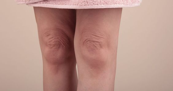 As You Age Your Skin Loses Elasticity All Over Your Body Promoting Wrinkles And Sagging Of The Knee Wrinkles Natural Skin Tightening Skin Care Remedies Acne