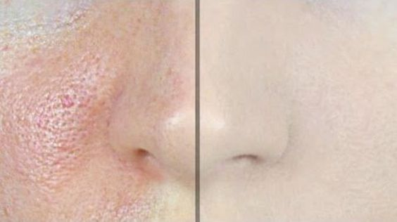 People with oily skin often have large and visible pores they hate. Because of this, these people try to make their pores less visible by [...]