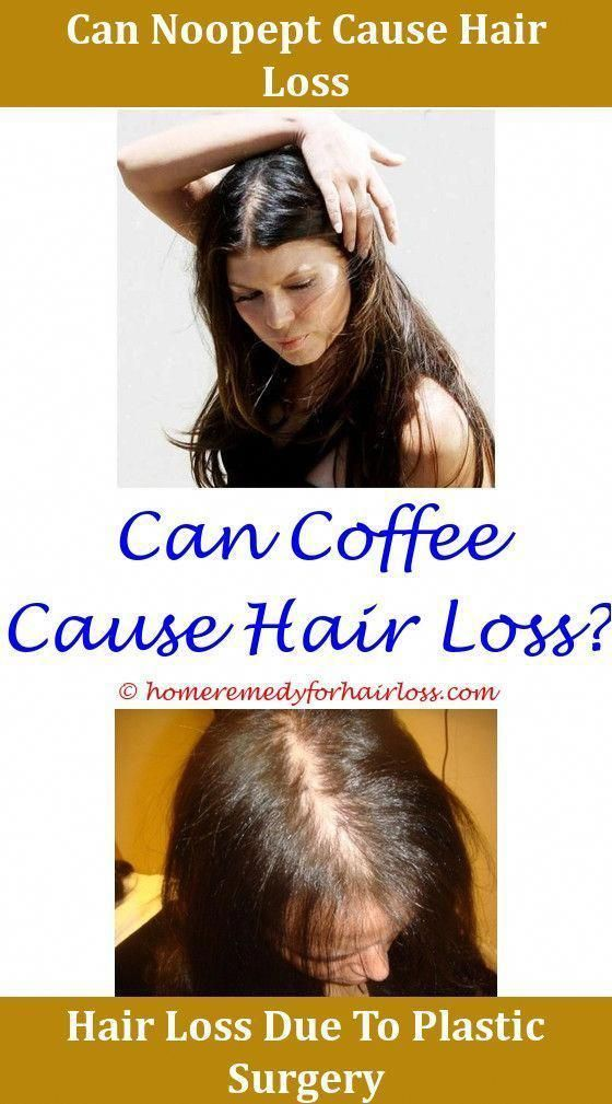 Pin On Hairloss Solution