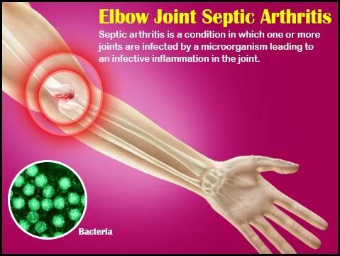 Elbow Joint Septic Arthritis Naturalremediesforarthritis Natural Remedies For Arthritis Arthritis Causes Arthritis