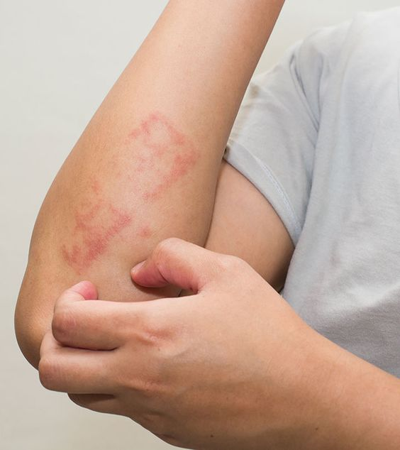 Psoriasis could be an embarrassing problem for most people. In this post, we discuss the ways to use apple cider vinegar for psoriasis treatment. Read on.