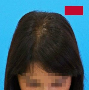 Mittels einer Haarverpflanzung ist es möglich, Eigenhaar in nur einer Sitzung zurückzugewinnen. Die Operation erfolgt unter örtlicher Betäubung, in nur wenigen Stunden. Vorteile dieser Lösung: - keine Abstoßungsgefahr - einfacher und schmerzloser Eingriff - ein Krankenhausaufhalt ist nicht notwendig