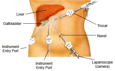 Gallbladder removal: laparoscopic procedure leaves only 4 tiny marks.
