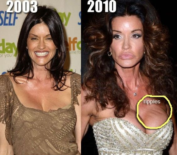 Top 10 Celebrity Breast Implants | Plastic Surgery Portal