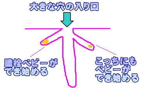 膿栓の取り方