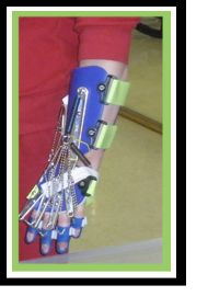The SaeboFlex is a custom-fabricated orthotic used to improve grasp and release. The SaeboFlex places the wrist and fingers in extension. Then due to the support provided by the SaeboFlex, the individual is able to grasp an object by voluntarily flexing his or her fingers. An extension spring system assists in re-opening the hand to release the object. People, up to 20 years after a neurological injury, have been found to benefit from treatment using the SaeboFlex.