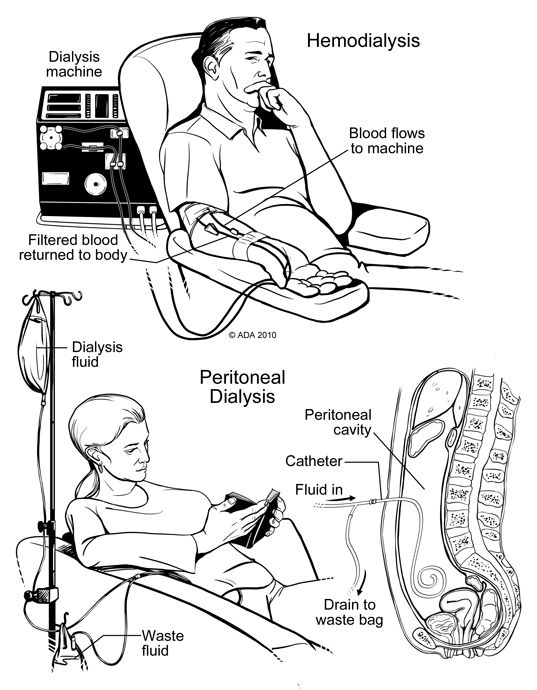 Renalcalculi Net  Hemodialysis Html Hemodialysis