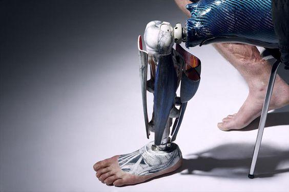 Protesis robóticas para ayudar a las personas a mejorar su calidad de vida