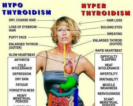 Causes and thyroids
