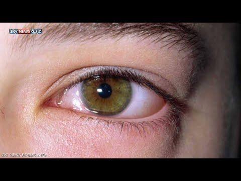 لن تتخيل أن هناك علاجات طبيعية مجربة لكل أمراض العيون لا ترتكبوا الخطأ الذي يرتكبه ملايين الناس Youtube