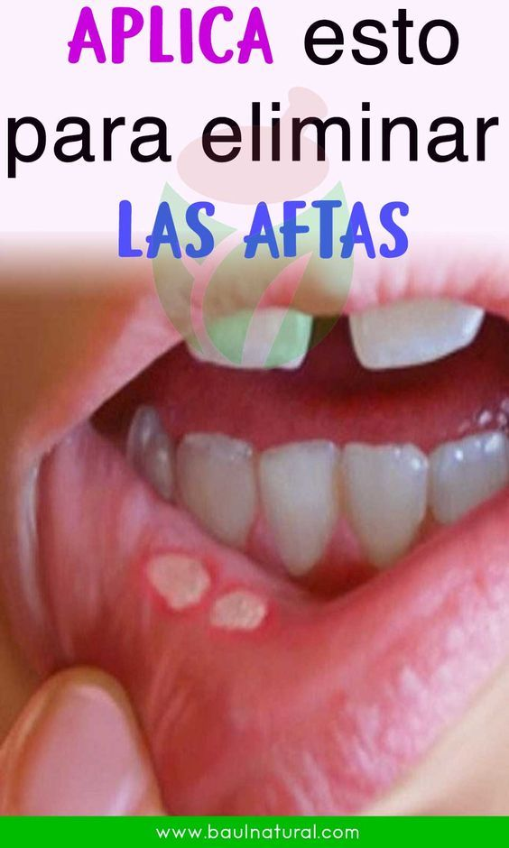 remedios naturales aftas en la boca