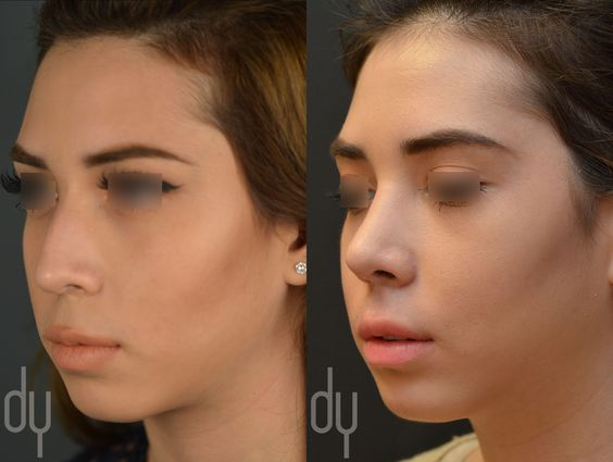 Beverly Hills Rhinoplasty Specialist Dr. Donald Yoo performed a primary rhinoplasty. This before and after picture was taken at 6 weeks post surgery.
