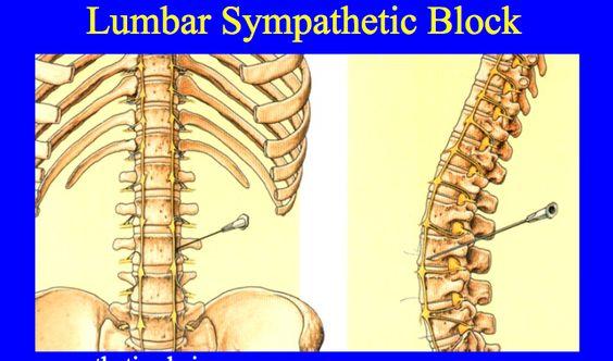Lumbar sympathetic chain anatomy