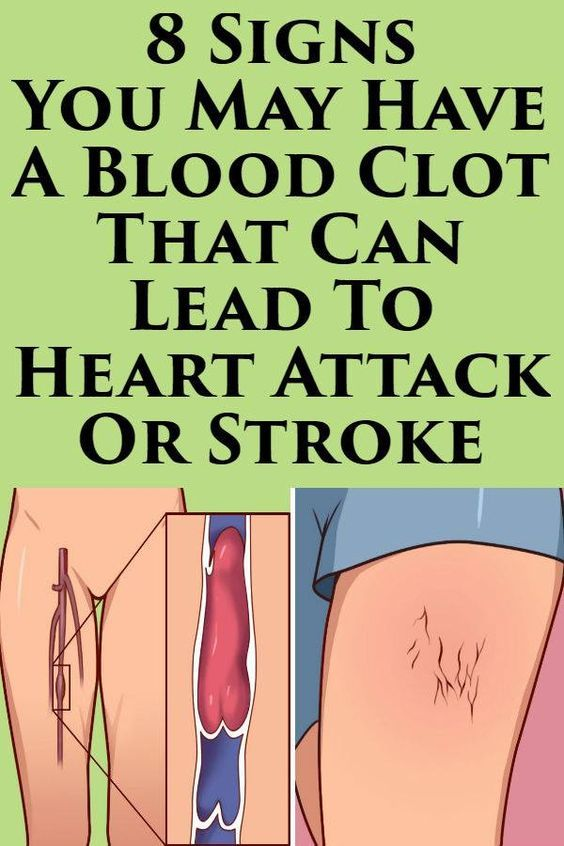 1908d770ce808321083ef1fc6dae5641 - How To Get Rid Of Blood Clots In Uterus