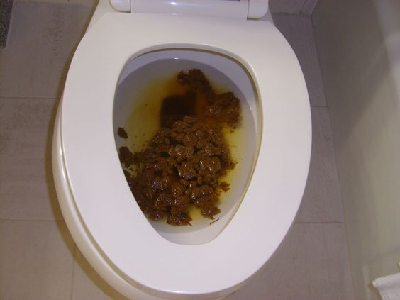 Picture of crap in a toilet what 10 numbers come up the most in roulette