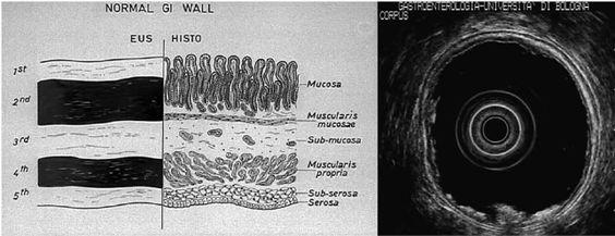 fig_1.jpg (643×248)    Stadiazione delle neoplasie del tratto gastrointestinale L'EUS è superiore alla TC nella stadiazione del tumore (T) e dei linfonodi (N) delle neoplasie del tratto gastroenterico.  Una stadiazione accurata del carcinoma esofageo e gastrico è fondamentale per indirizzare il paziente verso una resezione chirurgica curativa, oppure a una radio-chemioterapia neoadiuvante eventualmente seguita da intervento chirurgico, o invece verso una terapia palliativa, ottimizzando così…