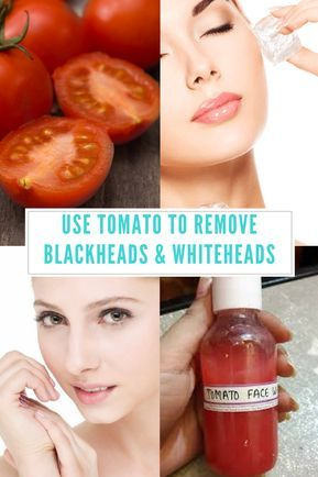 How to use tomato to remove blackheads....