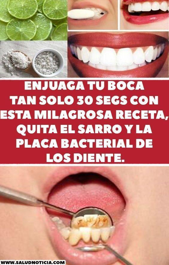 Remedio Casero Para Eliminar Las Caries El Sarro Y Blanquear Los Dientes En Muy Poco Tiempo Enjuague Bucal Casero Salud Dental Enjuague Bucal
