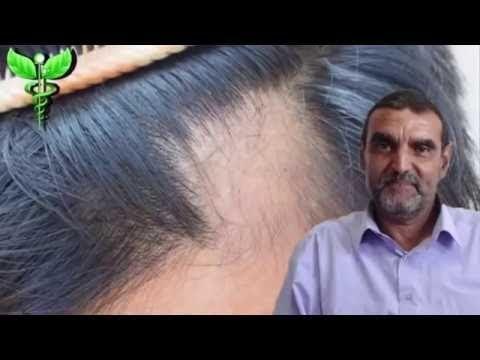 مهم جدا التونية أو داء الثعلبة معلومات مهمة عن أسبابه و علاجه مع الدكتور محمد الفايد Youtube Youtube Historical