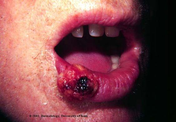 Lip Cancer risk for those on Blood Pressure Meds