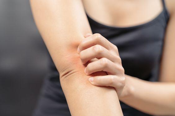 Healing Eczema, Psoriasis,