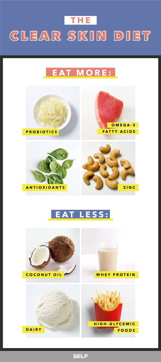 Food To Eat To Prevent Breakouts
