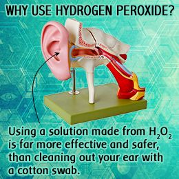 the right way to use hydrogen peroxide for earwax removal