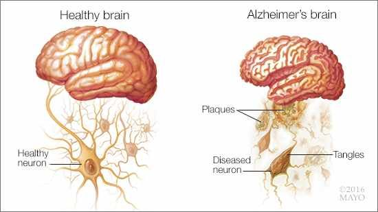 Medical representation of a healthy brain and a Alzheimer's brain