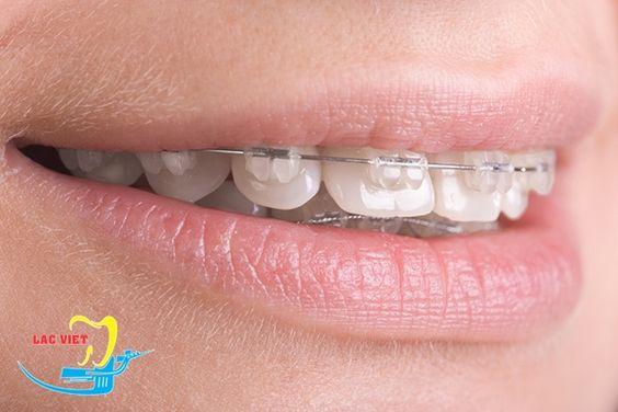 Niềng răng là phương pháp khắc phục tối ưu nhất khuyết điểm răng hô hở lợi