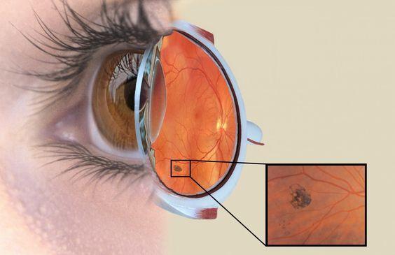 Wilsons Disease Amelia Sadlon 6-2 Pinterest - presumed ocular histoplasmosis