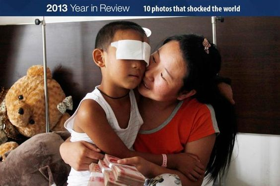 A six-year-old boy, whose eyes were gouged out, is cuddled by his mother, who is holding onto donations from the public, at a hospital in Ta...