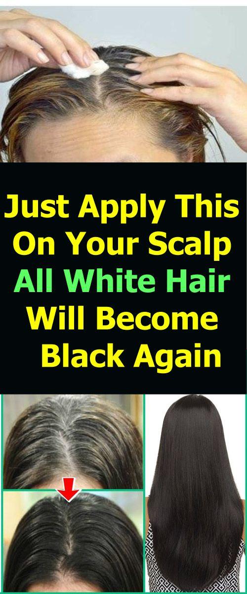 white scalp in hair