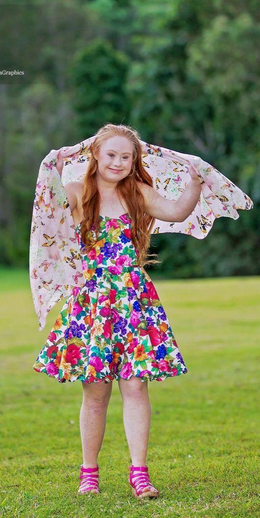 modelo con síndrome de Down