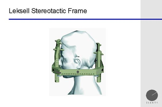 leksell g frame for stereotactic treatment | Gamma Knife | Pinterest