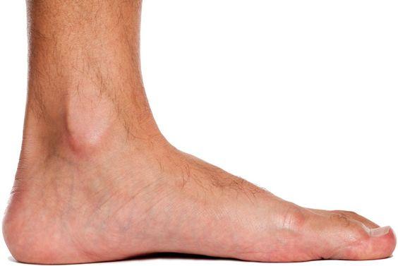 Esercizi per migliorare i piedi piatti (pes planus) >>> http://www.piuvivi.com/fitness/esercizi-piede-piatto-arco-plantare-pes-planus.html <<<